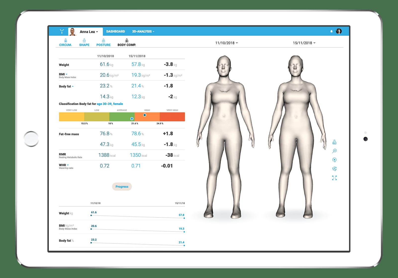 Exemple d'utilisation du BodyScanner 3D pour le bilan